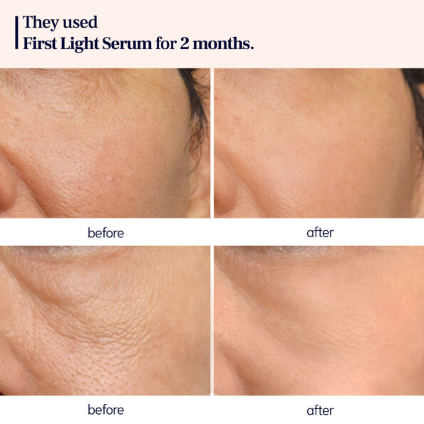 before and after_FL SERUM