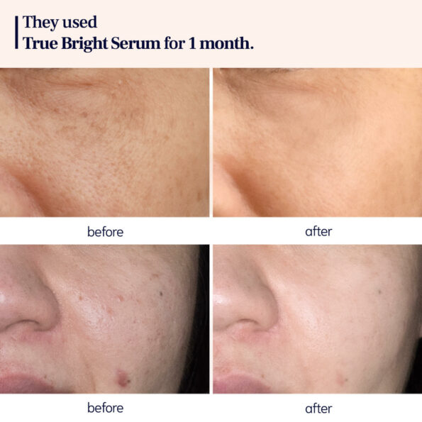 before and after_TB SERUM